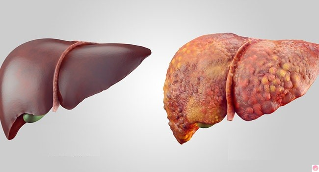 Depurare-fegato