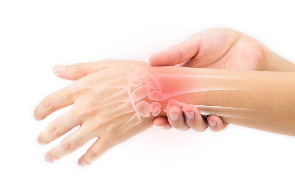 Artrire-reumatoide1